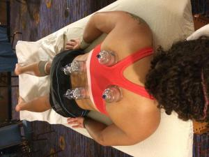 NYC Old Blue Rugby Championship athlete receives cupping during treatment session at hotel